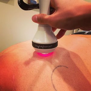 Dr. Jerry Lo treating a patient with the LightForce Laser